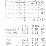 Nalaz spirometrije, Poliklinika Kvarantan