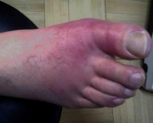 Giht- urički artritis