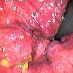 Hemoroidi u anusu