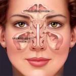 Maksilarni i frontalni sinusi, Poliklinika Kvarantan