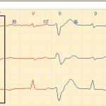 Aritmija u Holteru
