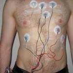 Kako se postavlja i nosi Holter EKG