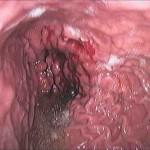 Karcinom želuca, gastroskopija