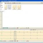 Holter nalaz, EKG, Poliklinika Kvarantan