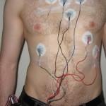 Elektrode Holtera EKG, Poliklinika Kvarantan