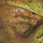Nedovoljno dobro očišćeno crijevo za kolonoskopiju, Poliklinika Kvarantan