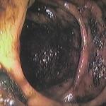 Slika nedovoljno očišćenog debelog crijeva.