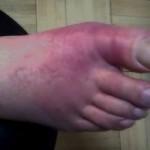 Urički artiritis palca noge